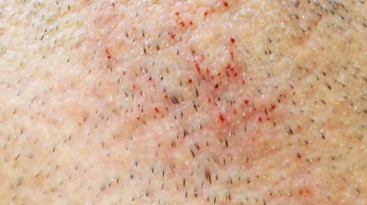 Výsledek po holení při vysokém tlaku na pokožku