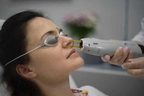 Laserová epilace chloupků v nose