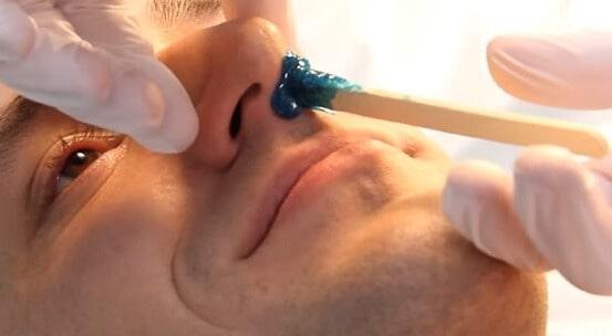 Epilace chloupků v nose voskem
