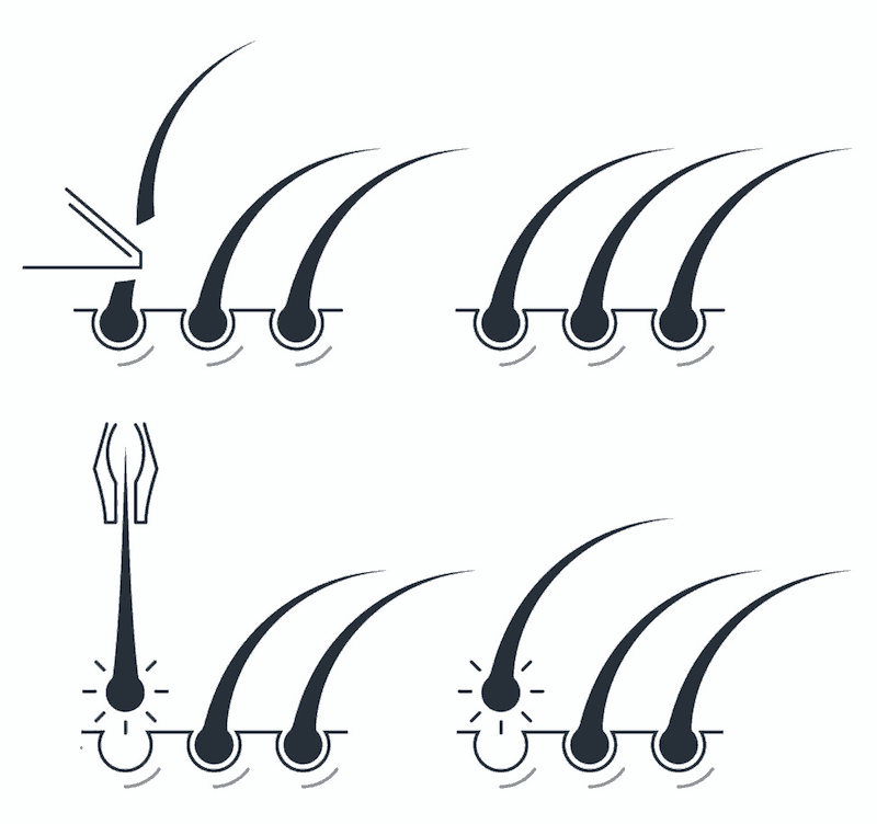 Depilace (nahoře) = seřezávání, epilace (dole) = likvidace včetně kořínku
