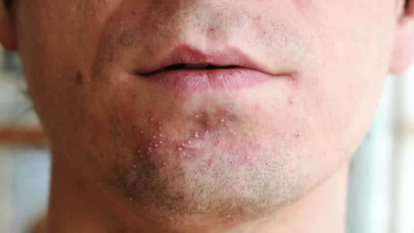 Podráždění pokožky po holení může připomínat akné