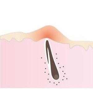 Jak zabránit zarůstání chloupků po epilaci a depilaci 🤔 Ohol.cz ✅