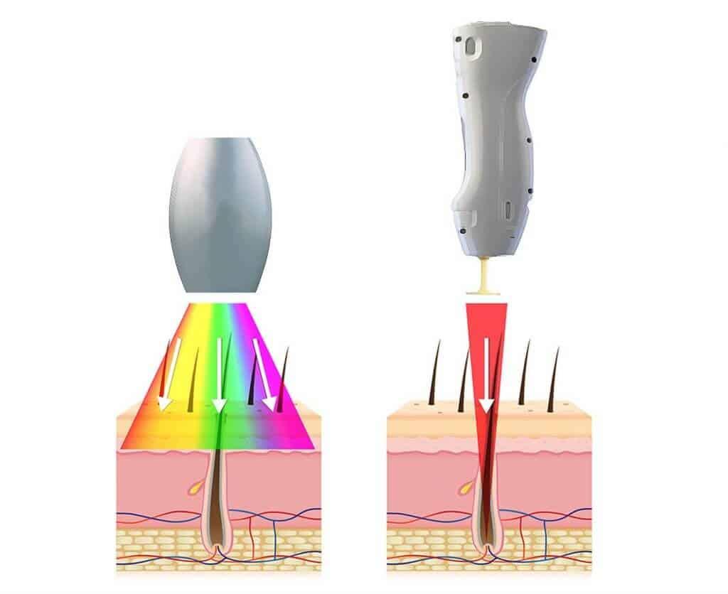 Laserová epilace a IPL epilace. Jaké jsou rozdíly a která oholí trvalé?
