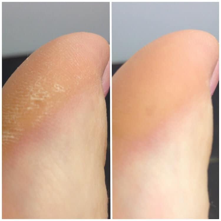 Před a po pedikůře s Scholl Velvet Smooth Wet&Dry