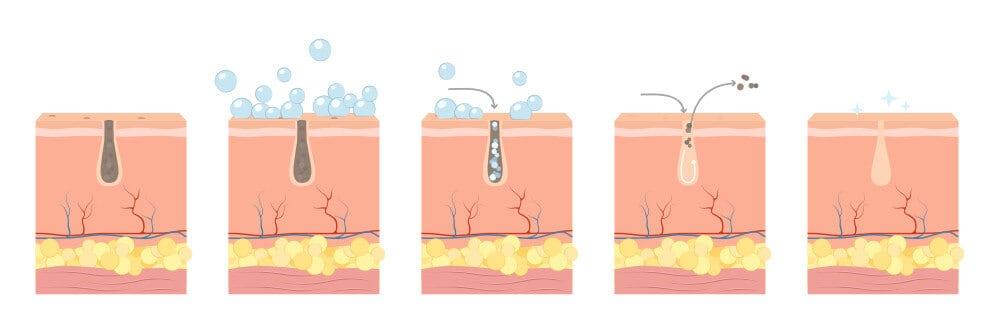 Proces čištění ucpaných pórů